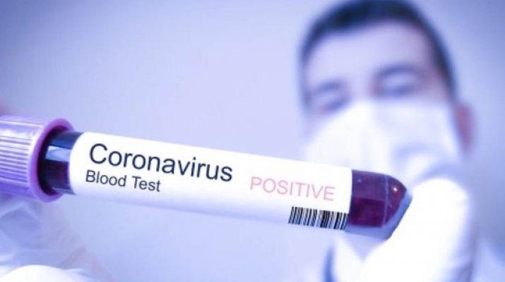 Benarkan Produk Impor China Bisa Tularkan Virus Corona
